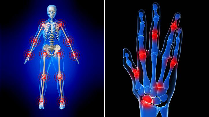 What Do You Really Know About Rheumatoid Arthritis
